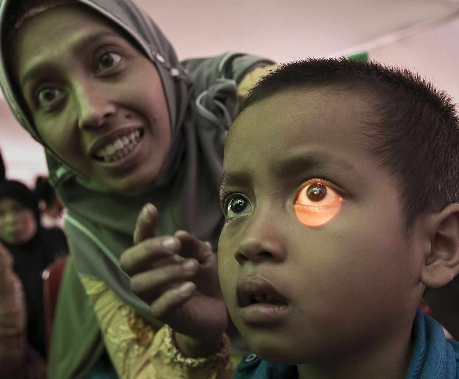 Child with cataract
